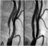 carotid_before_after_stent